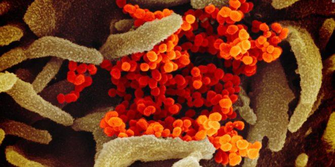 Coronavirus pandemic: Updates from around the world